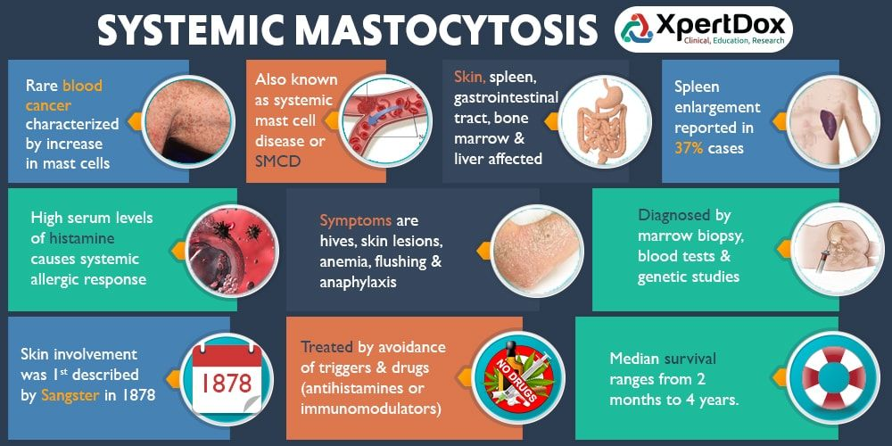 Find doctors, hospitals and clinical trials for Systemic Mastocytosis.  Learn about causes, symptoms,… | Mast cell activation syndrome, Mast cell,  Low histamine diet