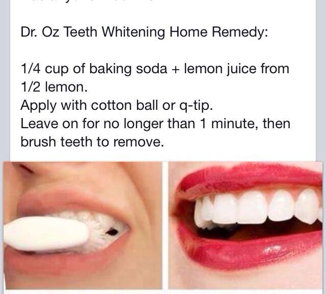 ✨How To Whiten Your Teeth✨ #SkinCareSecretsBeautyHacks #howtowhitenyourteeth ✨How To Whiten Your Teeth✨ #SkinCareSecretsBeautyHacks #how to whiten your teeth