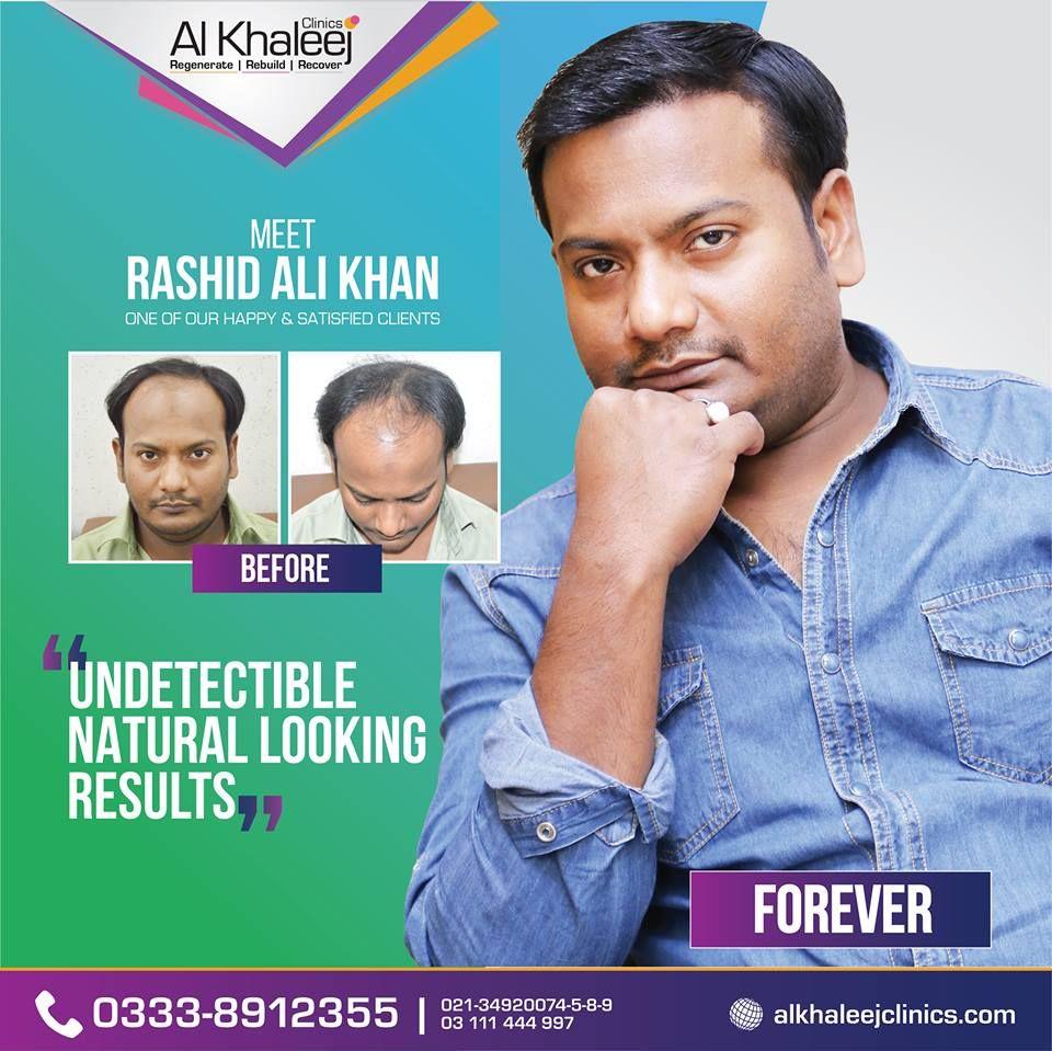 Hair Transplant In Pakistan Alkhaleej Clinics Is The Best Hair Transplant Clinic In Pakistan Visit Htt Best Hair Transplant Hair Transplant Cool Hairstyles