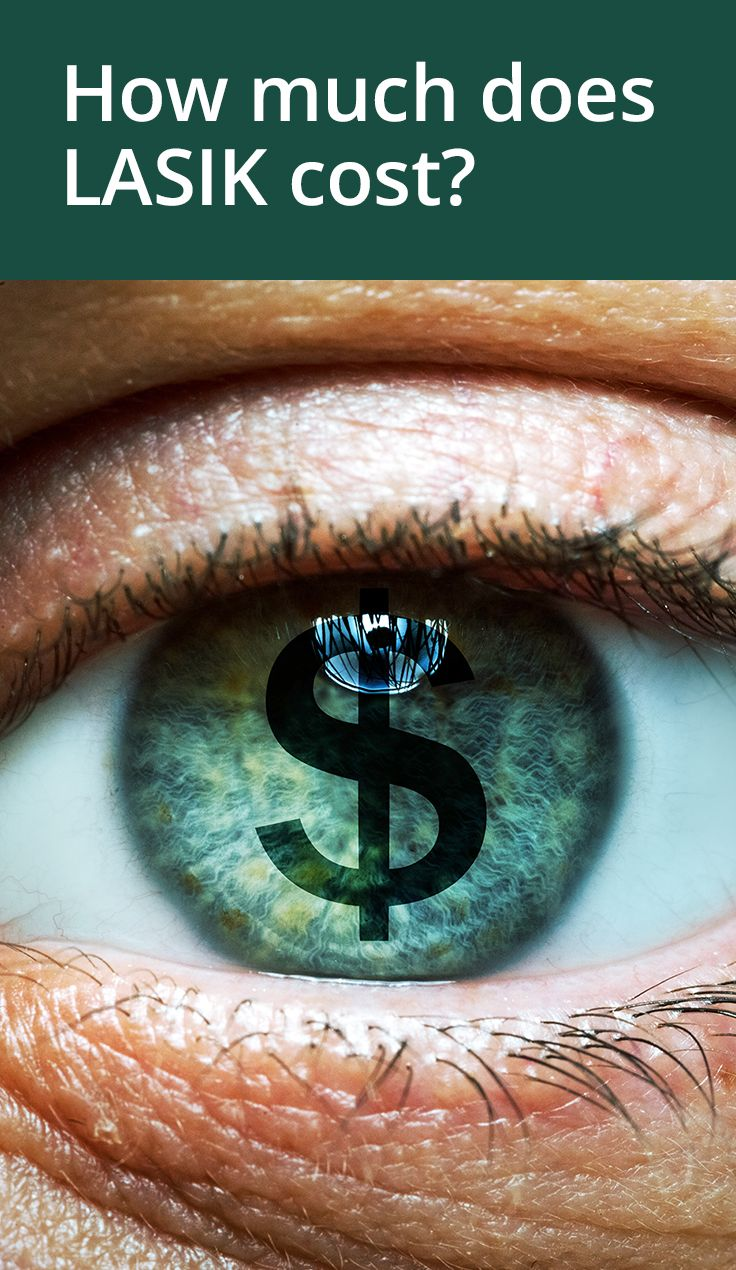 How Much Does Lasik Cost Lasik Cost Lasik Eye Surgery Lasik