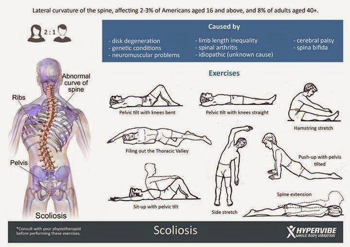 yoga y escoliosis
