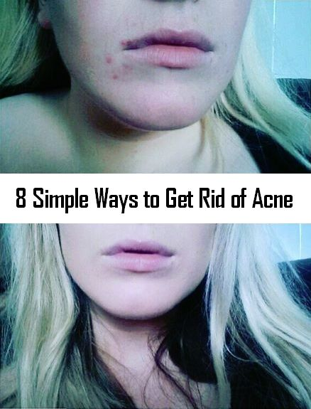 Ways To Get Rid Of Acne Without Products