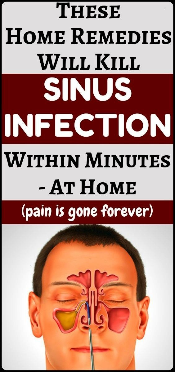 #infection #treatment #remedies #amazing #fitness #health #sinus #home #and #10Sinus Infection Treat...