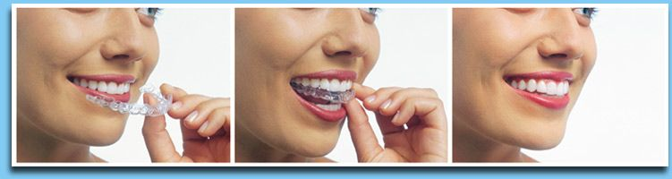 Straight Teeth Without Braces? It's true! With Invisalign
