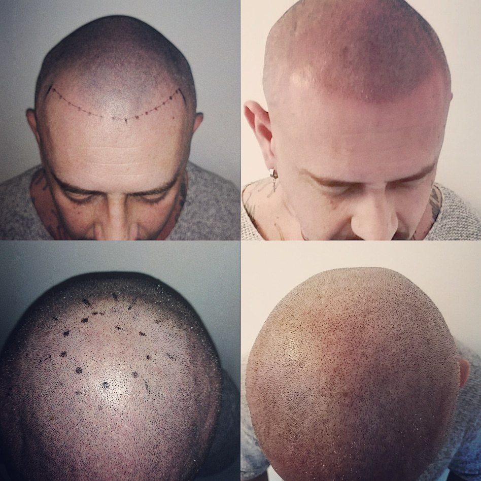 Male Pattern Baldness Treatments Hair Transplant Scar Cover Up