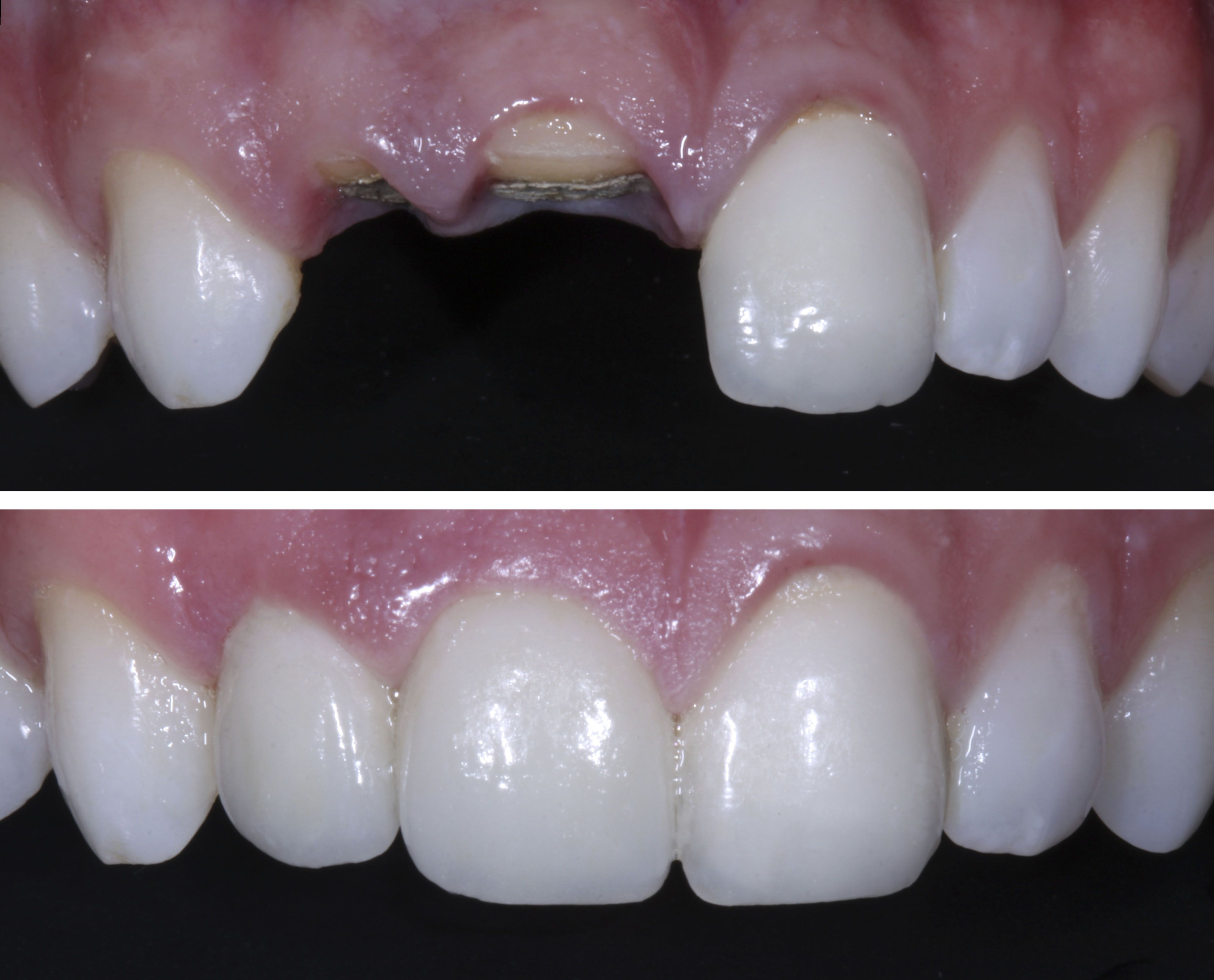Before and After: Patient lost two front teeth in a rowing ...