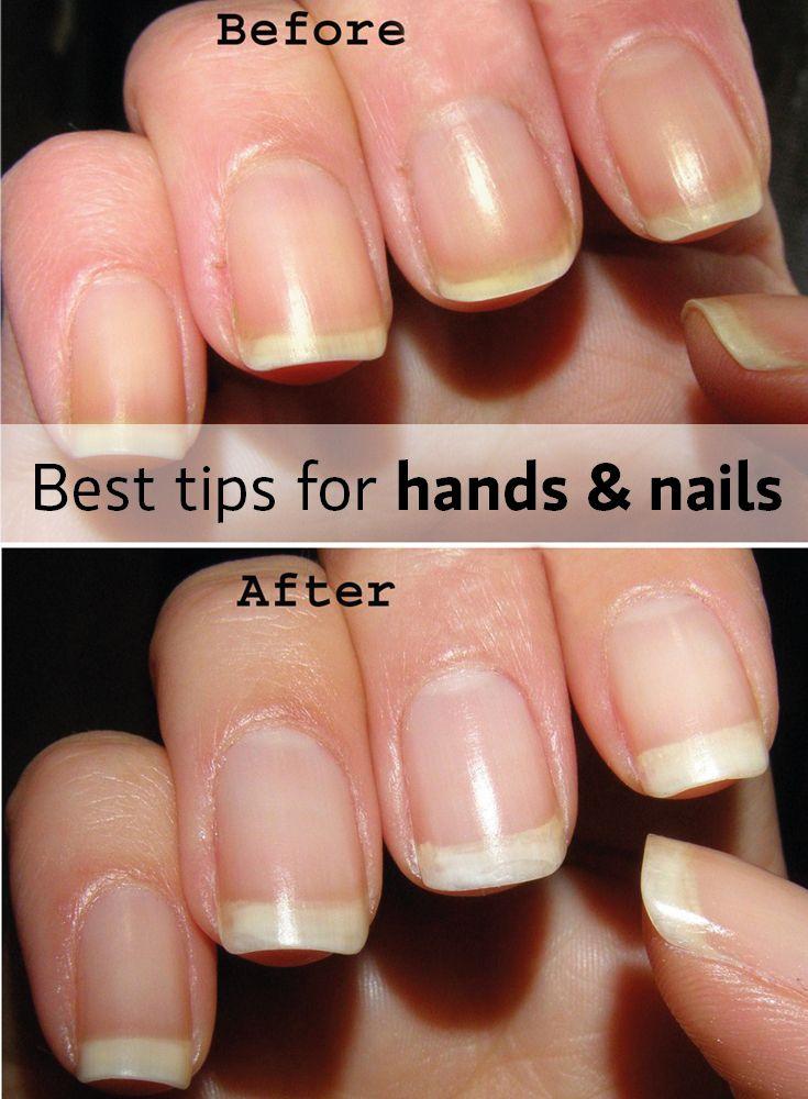 Gel Nail Damage Vs Color Street Damaged Nails Color Street Nails Gel Nails