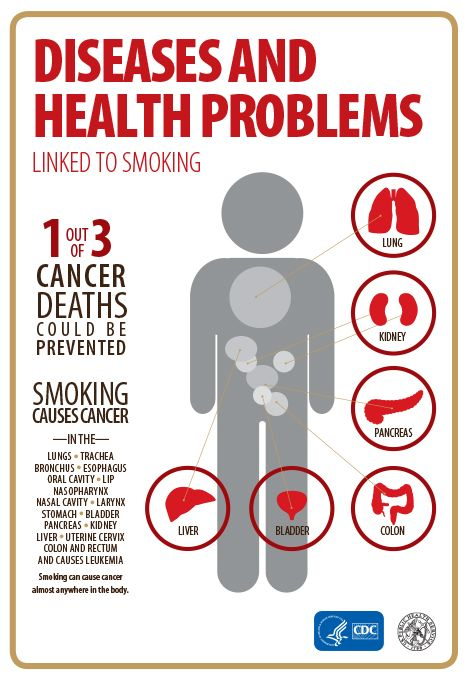 smoking can cause cancer almost anywhere in the body