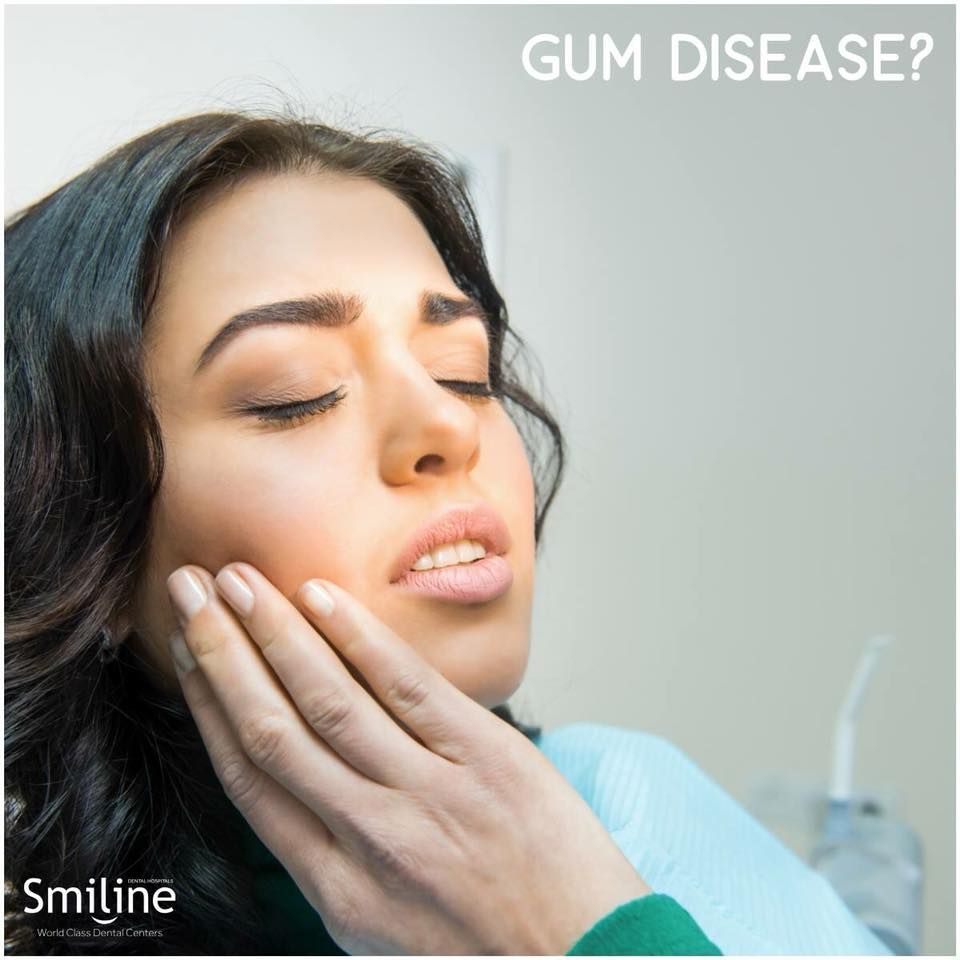 Symptoms of gum disease include • Bad breath that won't