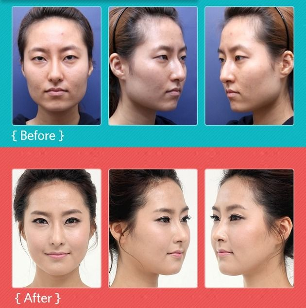 JK Shin Plastic Surgery Clinic Korean Plastic Surgery Plastic - plastic surgery consultant sample resume