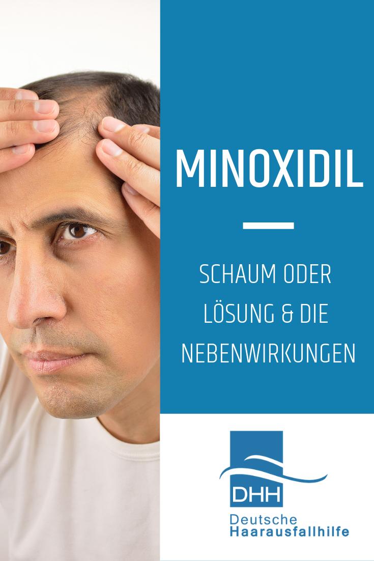 Minoxidil Nebenwirkungen Frauen