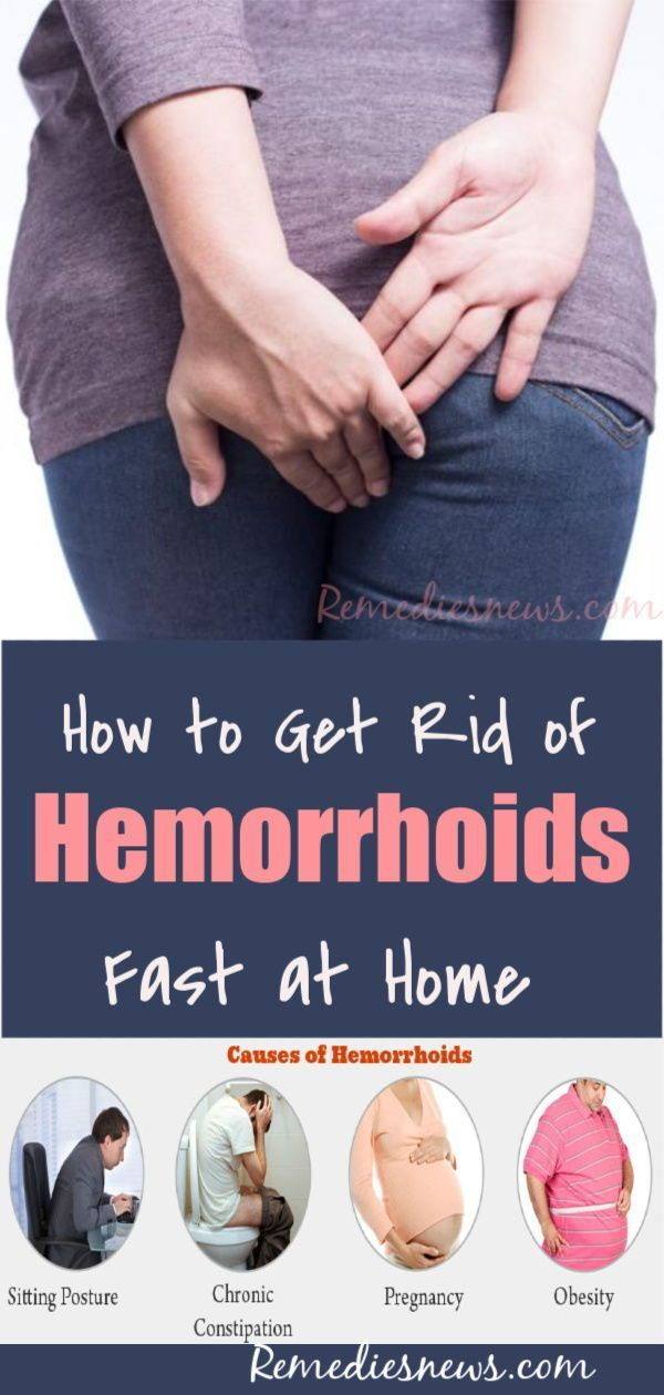 How To Get Rid Of External Hemorrhoids Fast At Home