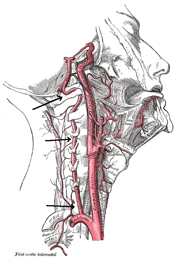 Vertebral artery - Vertebral artery - Wikipedia, the free ...