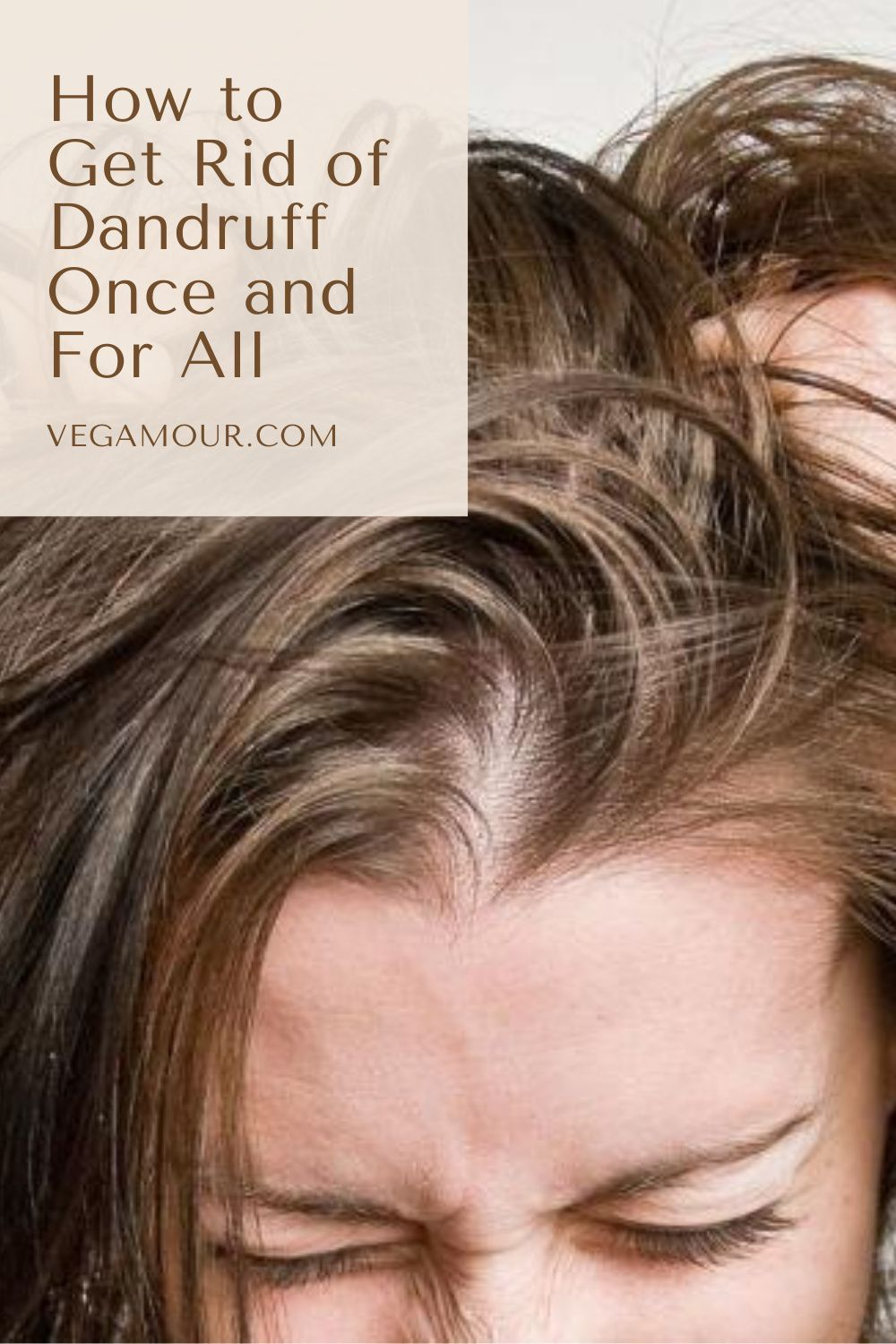 How To Get Rid Of Dandruff Once And For All In 2020 Getting Rid Of Dandruff Dandruff How To Get Rid