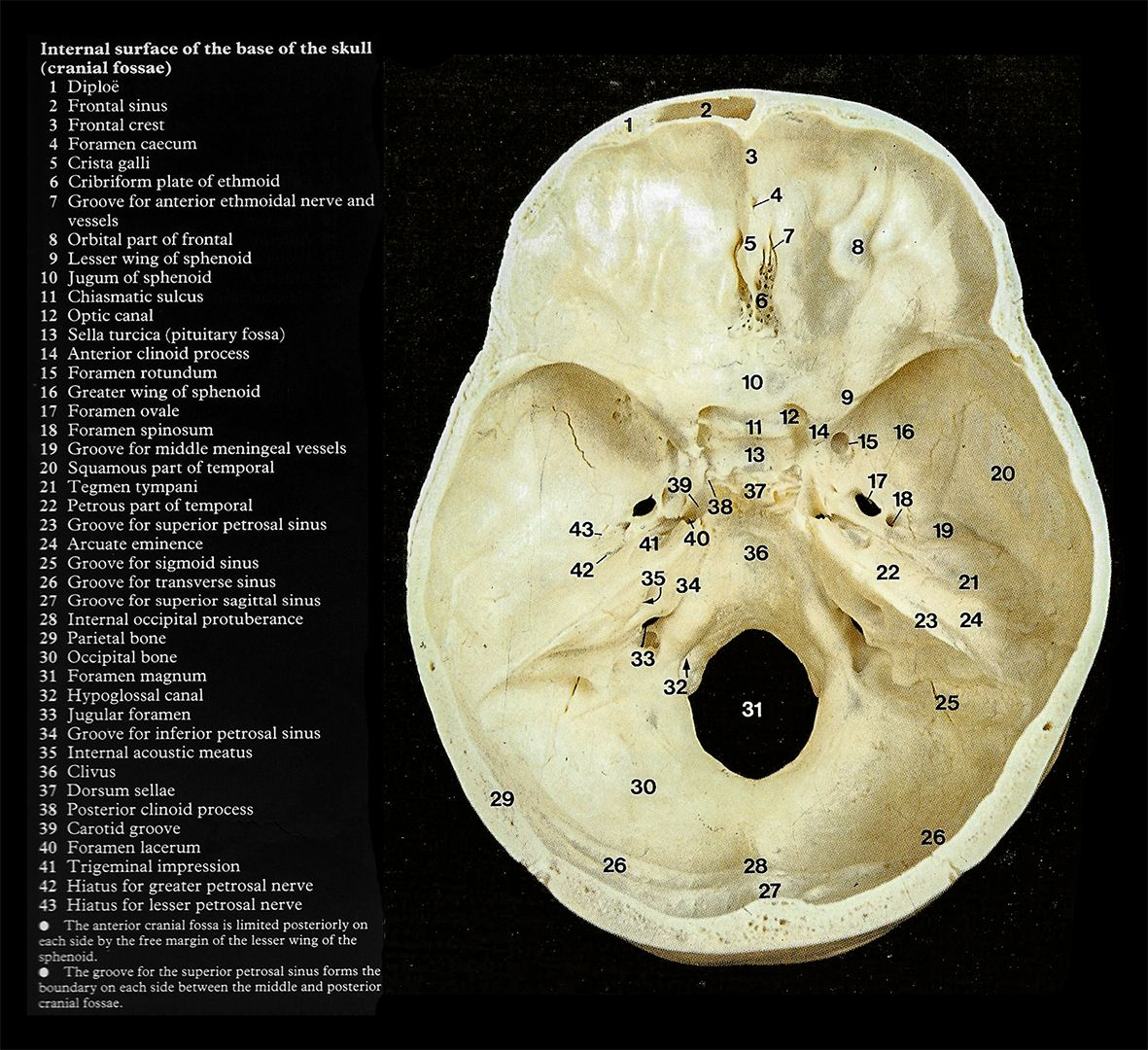 Internal Skull Base Anatomy Anatoma Pinterest Anatomy
