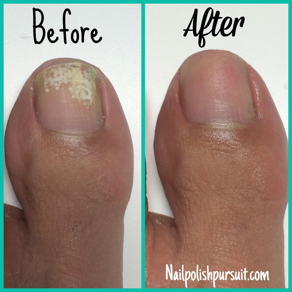 So I Will Get To Work Buffing How To Remove White Marks From Your Toes Nailpolishpursuit Com Toe Nail Discoloration Toe Nails White White Marks On Nails