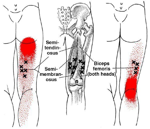 Hamstring Trigger Points Lower Extremity Information Pinterest