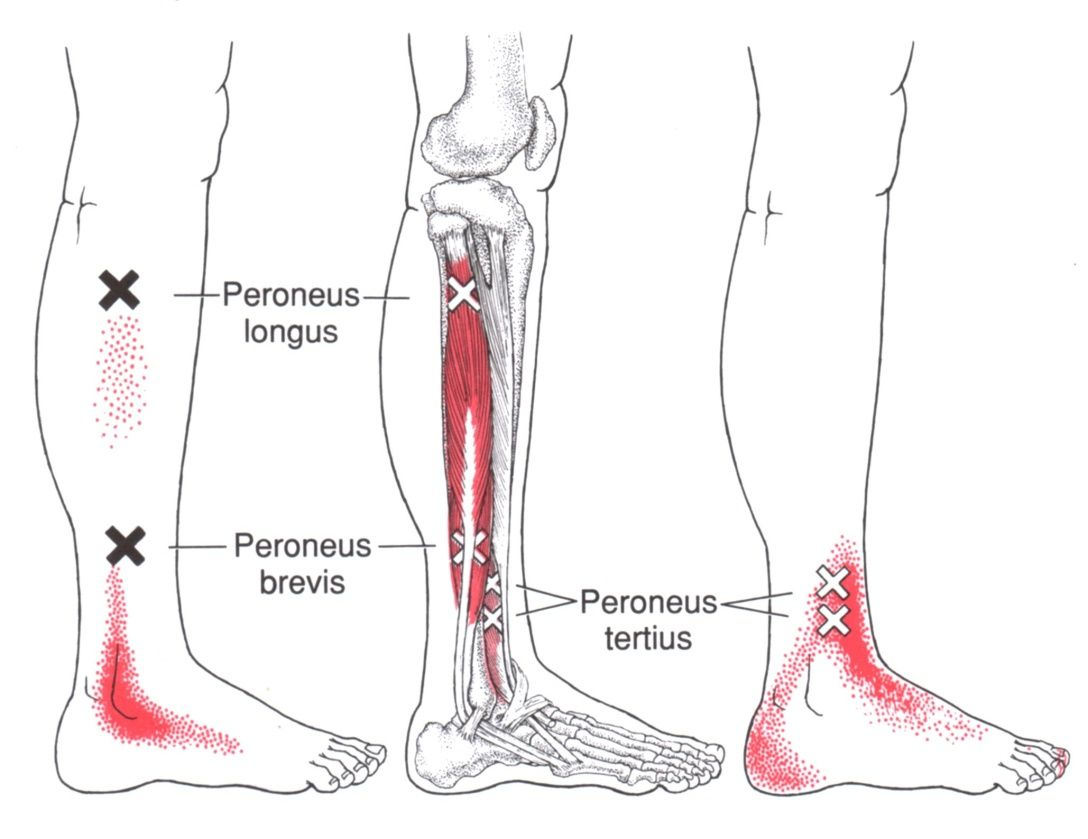 Peroneus Longus | Trigger Point & Referred Pain Guide | Massage ...