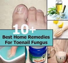 What is the best home remedy for toenail fungus? | Feed me | Nail ...