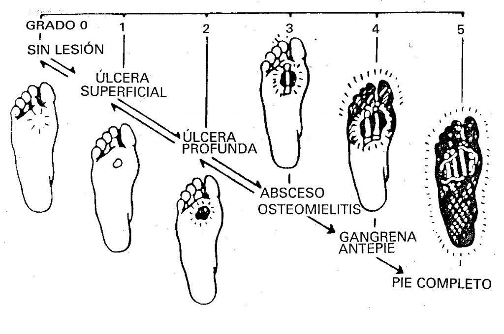 Síntomas del pie de charcot diabetes