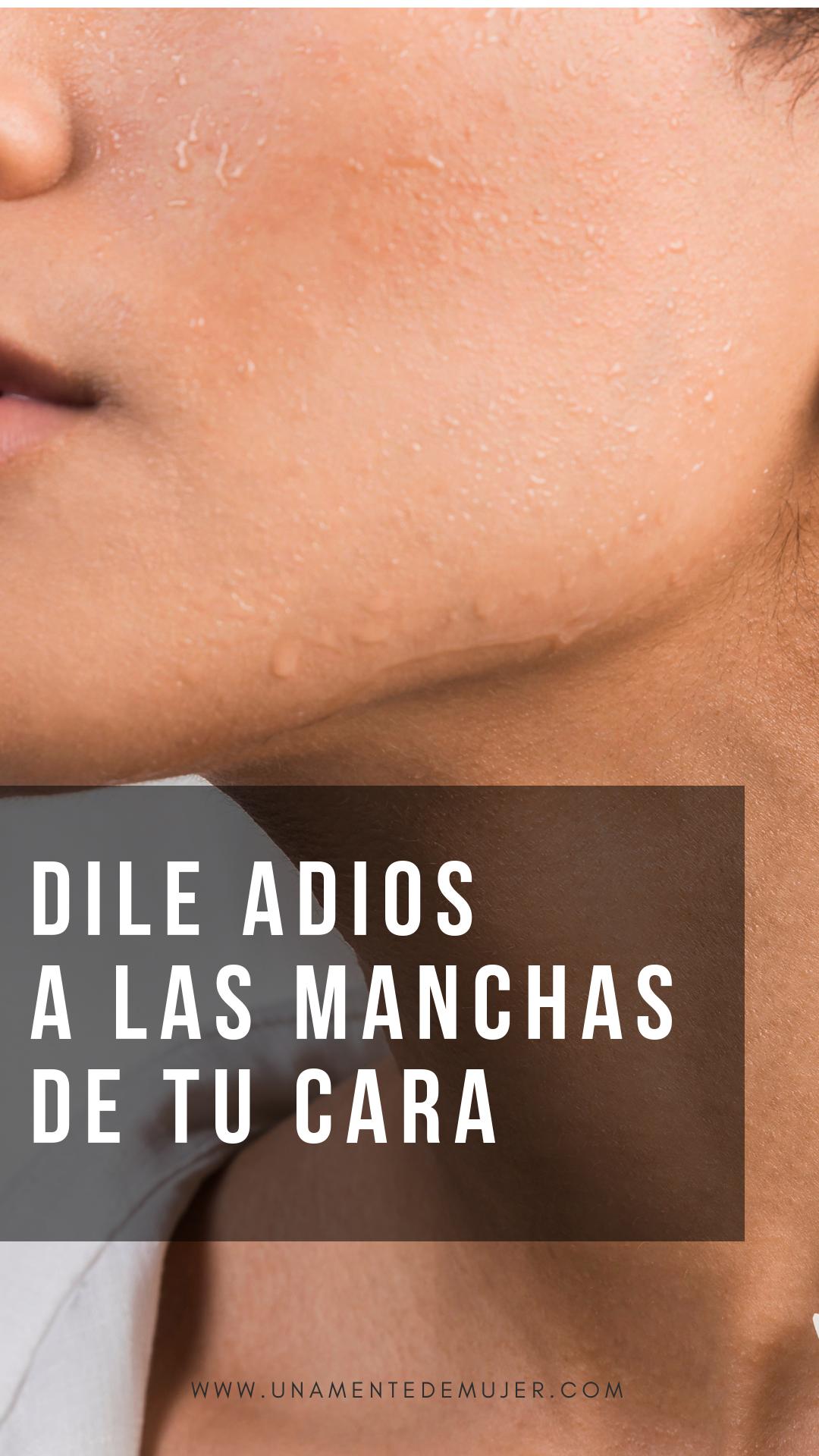 10 Remedios Caseros Para Quitar Manchas En La Piel Una Mente De Mujer Quitar Manchas Cara Manchas En La Cara Eliminar Cicatrices De Acne
