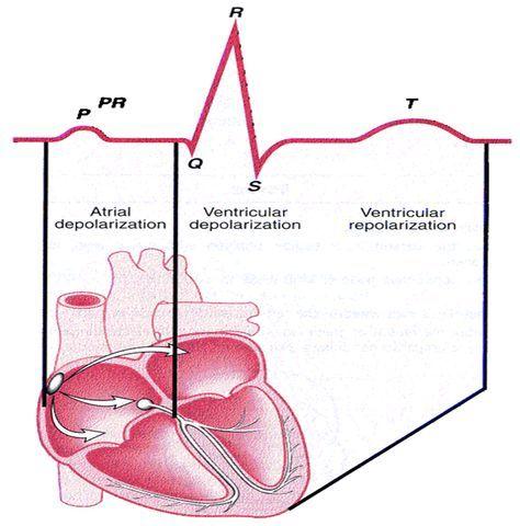 QRS Complex | wave atrial depolarization qrs complex ...