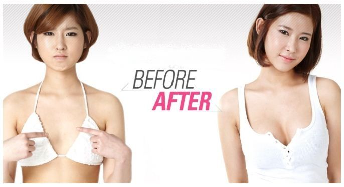 Korean breast implants before and after