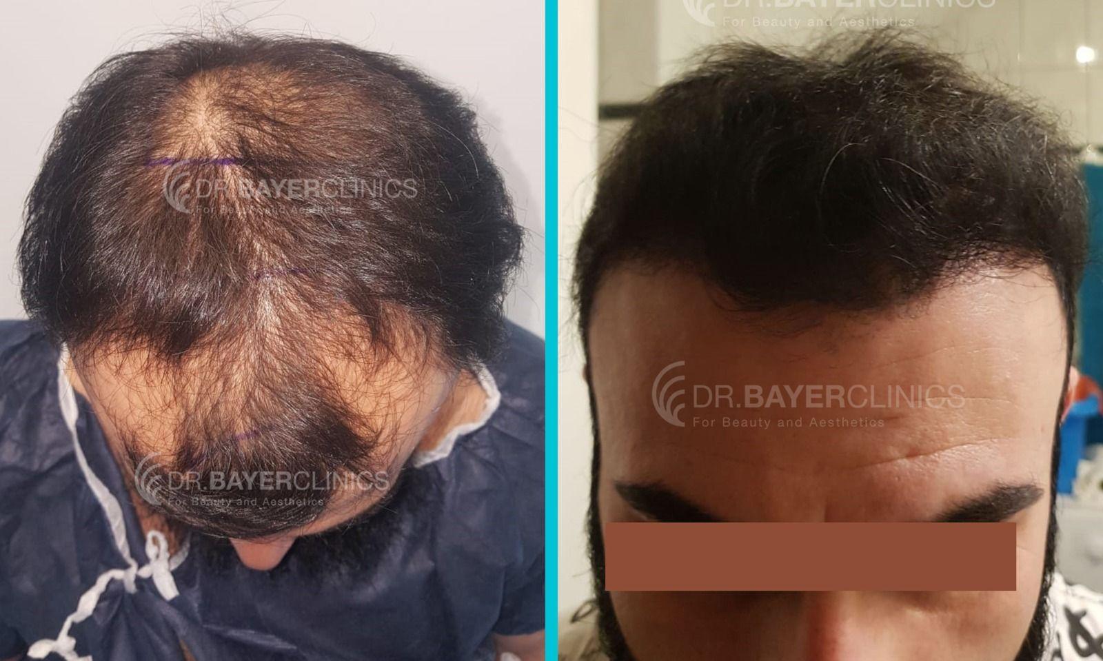قبل وبعد زراعة الشعر Beauty