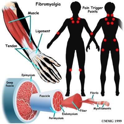 Trigger Points Fibro Pinterest Fibromyalgia Therapy And