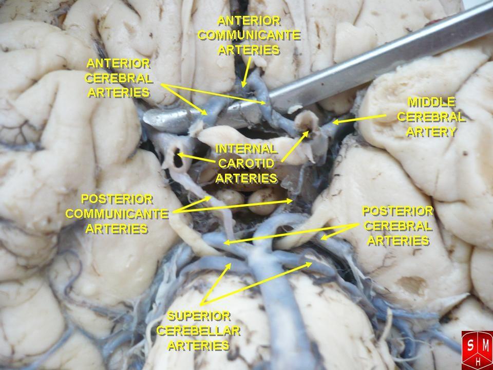 carotid siphon - Google Search | vascular | Pinterest