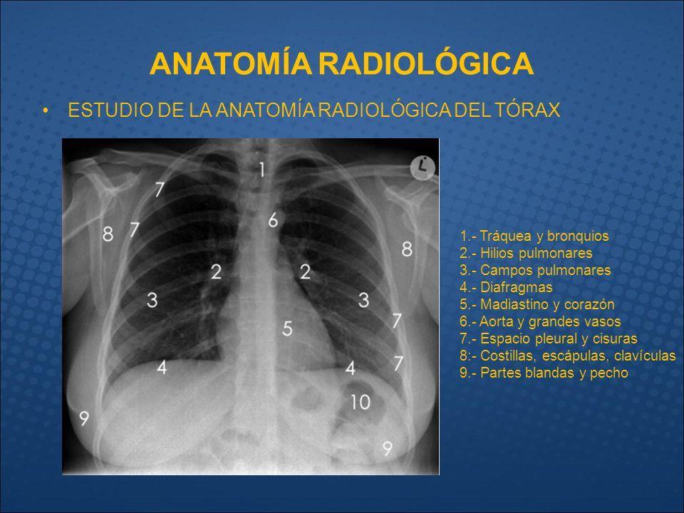 Resultado de imagen para partes que conforman un rayos x de torax ...