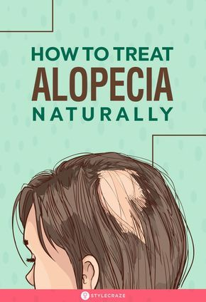 What Is Alopecia And How To Treat It Naturally | Hair ...