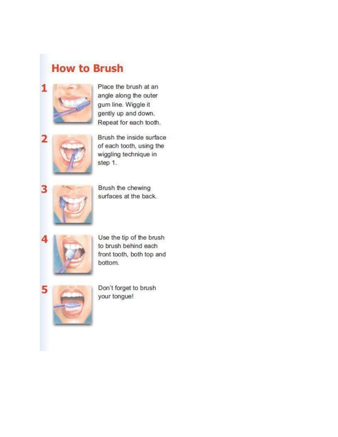 Wisdom tooth Extraction (With images) Tooth extraction