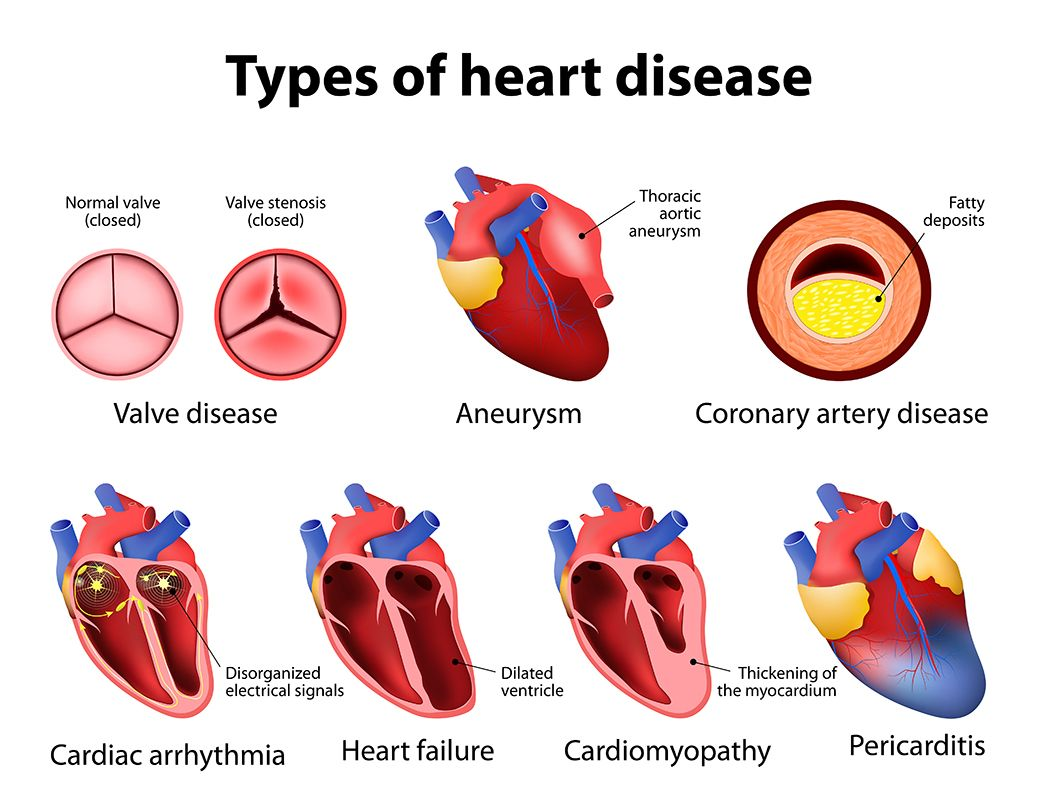 Different Types Of Heart Diseases That Can Develop