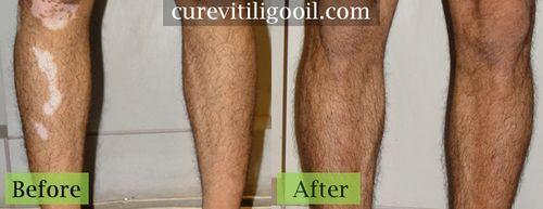 Vitiligo Symptoms : Get information about the Vitiligo Symptoms and Vitiligo dia