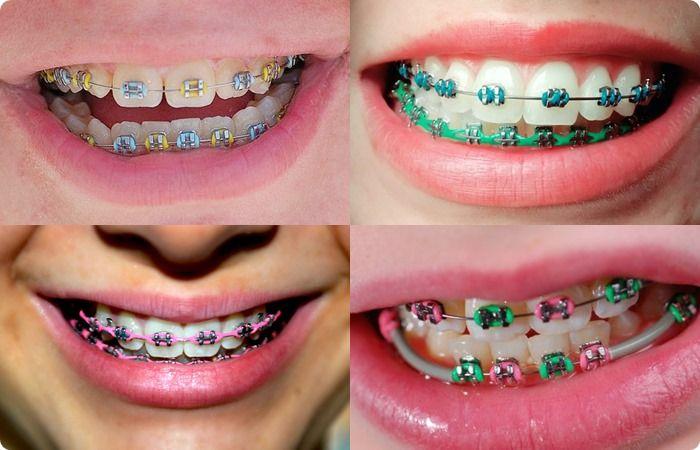 ไอเดียเปลี่ยนสียางจัดฟัน สียาง