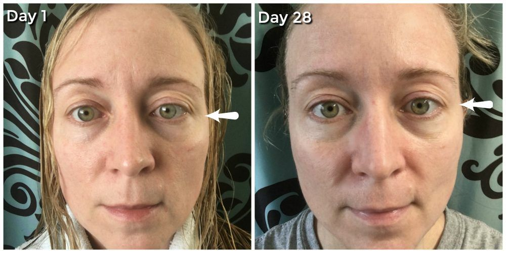 Aging Skin Problems And How I Am Fighting Them Remove Eye
