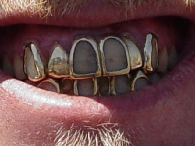 sharp grillz. white gold grill boy john by sharp grillz s
