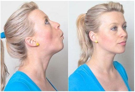 Garcinia cambogia extra e tiroide