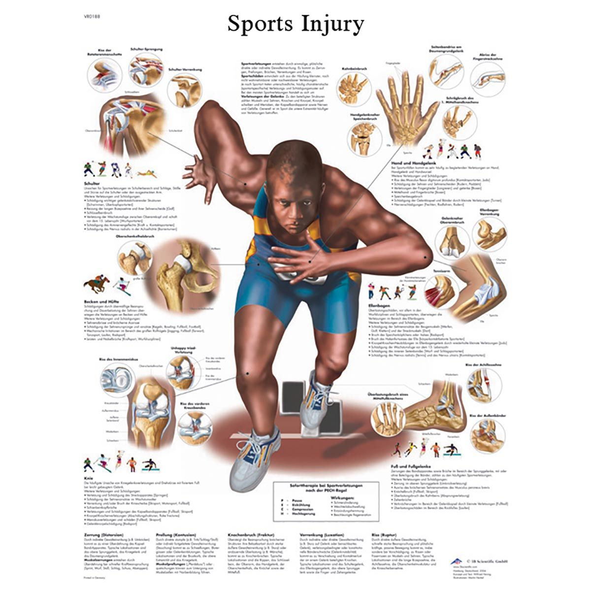Anatomical Charts And Posters Anatomy Charts Vinyl Adhesive Charts Sticky Chart Sports Injury Stickychart Sports Physical Therapy Athletic Training Sports Medicine Sports Massage Therapy