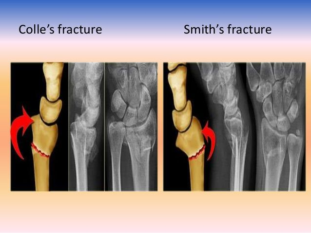 Image Result For Colles Vs Smith Fracture Ortho Pinterest