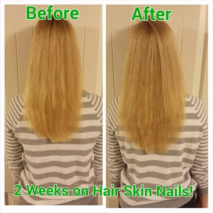 It Works Hair Skin Nails Before And After Pictures | Hairstyle ...