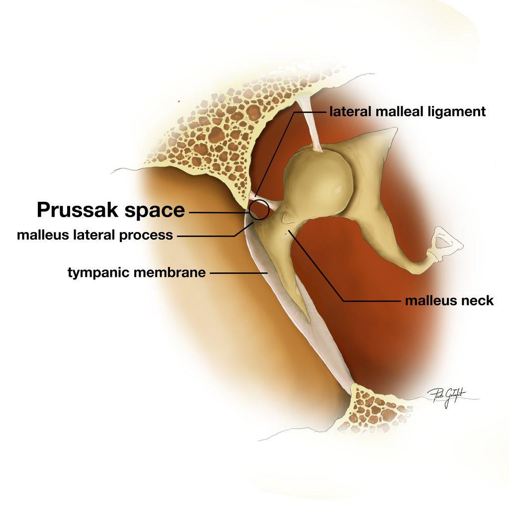 Prussak space - diagram | Radiology Case | Radiopaedia.org ...