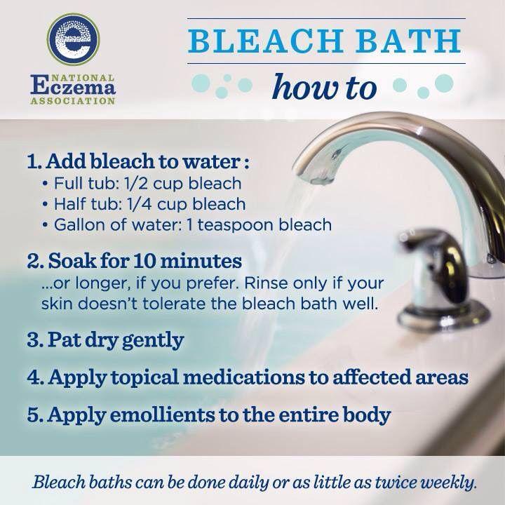 Bleach Bath Recipe For Ezcema Bleach Bath For Eczema Skin Bleaching Bleach Bath