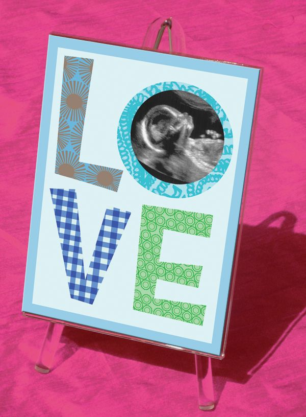 It\'s Love At First Sight! Showcase baby\'s first precious photo with ...