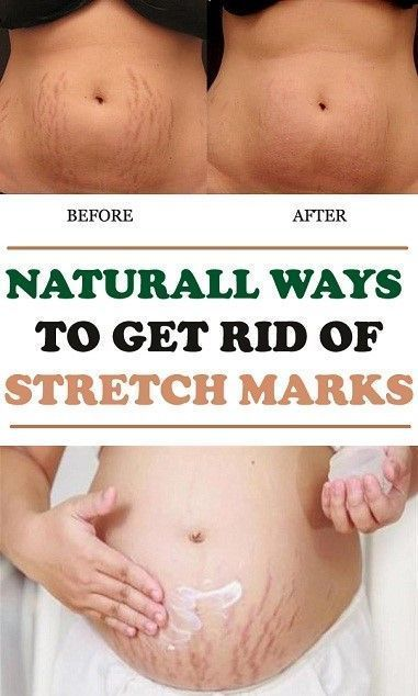 How To Get Rid Of Stretch Marks Naturally – Buzzhome World ...