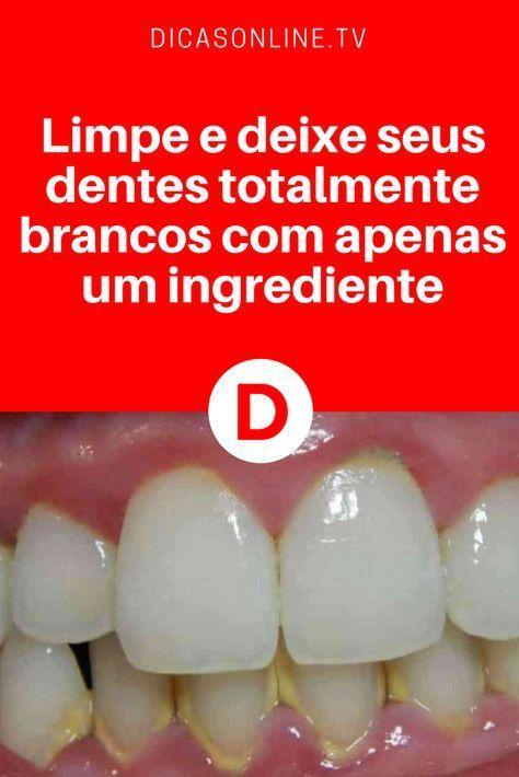 Limpe E Deixe Seus Dentes Totalmente Brancos Com Apenas Um