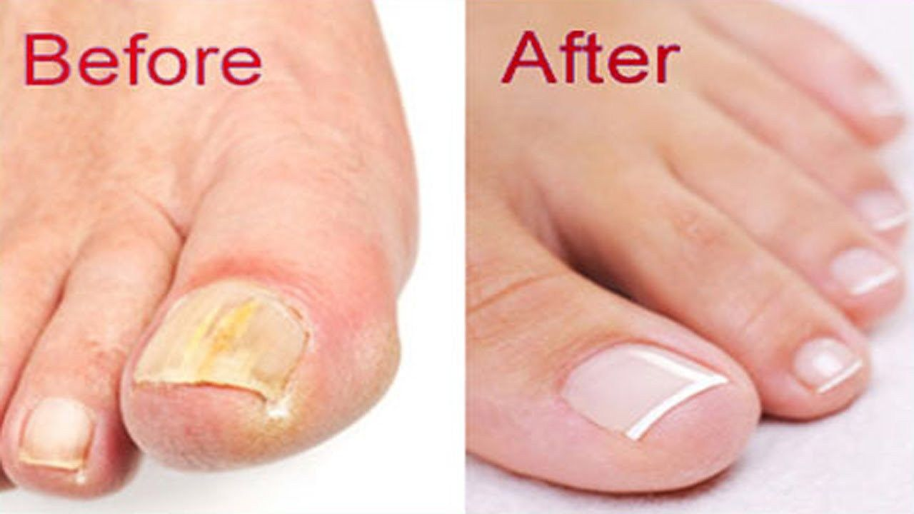 The most effective nails in the home