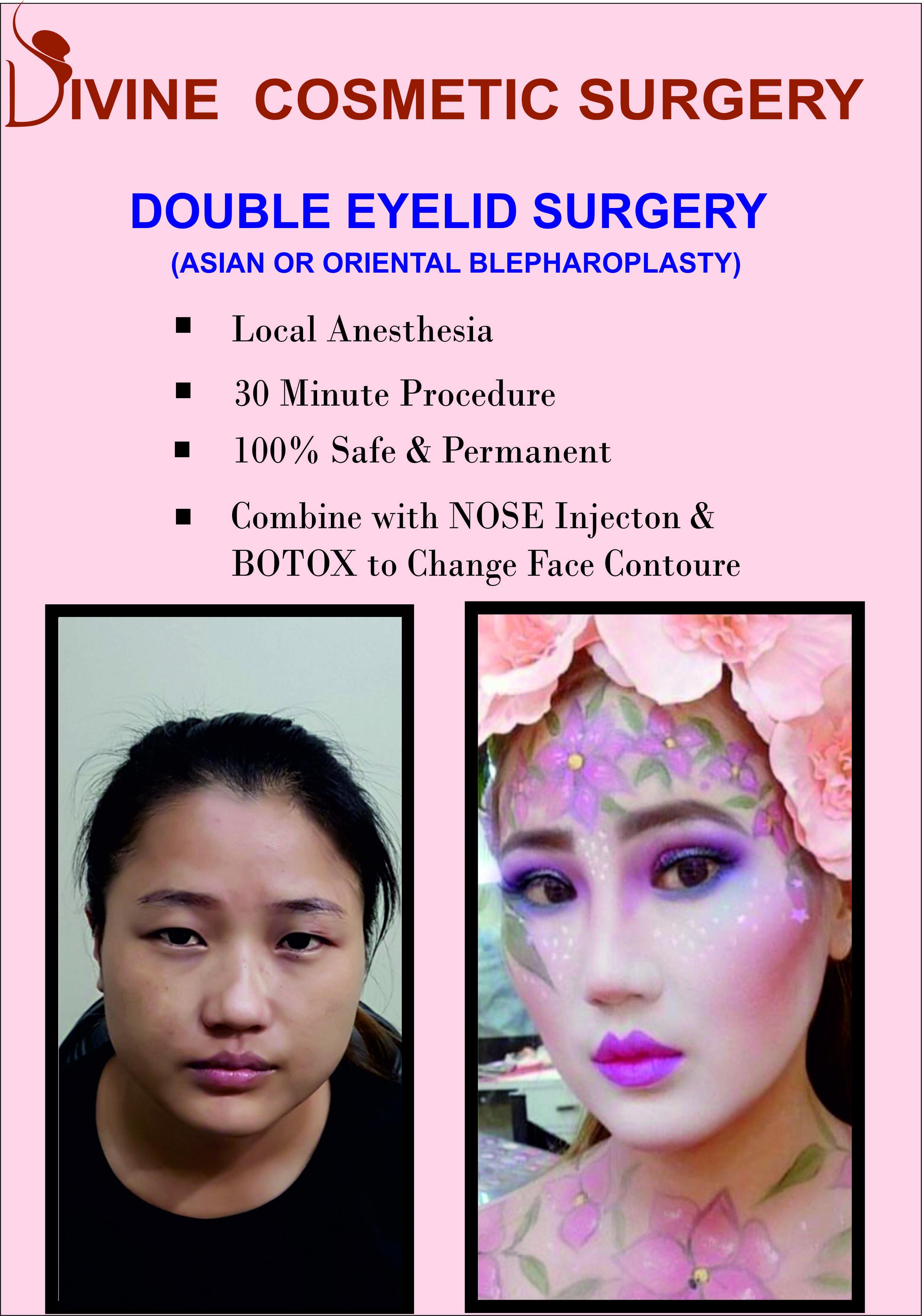 Face contour face contouring cosmetic surgery eyelid