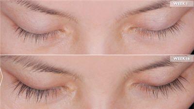 Growing Longer Eyelashes False Eyelashes Latisse Eyelashes